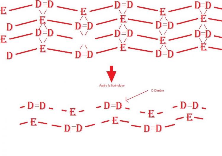 Utilidad clínica del Dímero-D